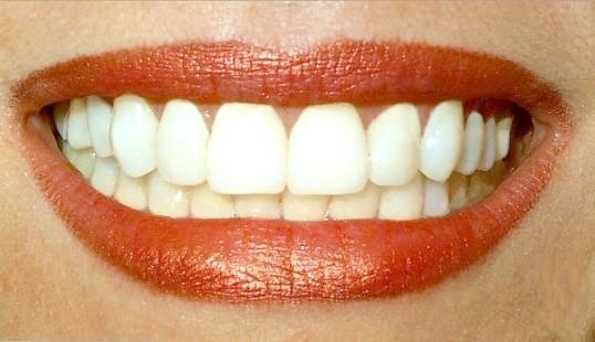 Як склеїти зубний протез