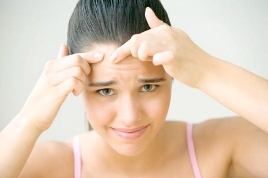 Як позбутися від гормональних прищів