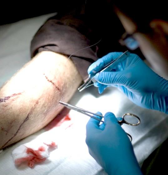 Як лікувати різані рани